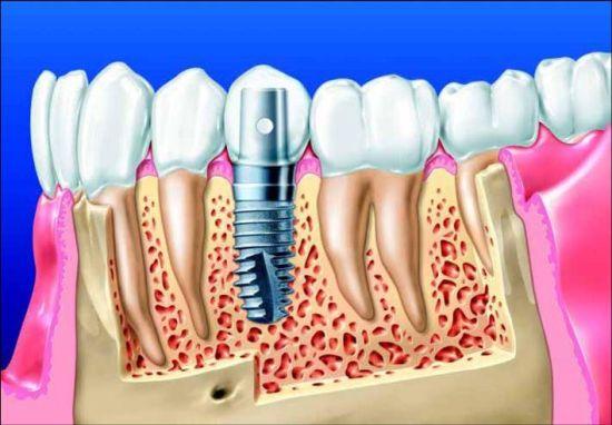 Зубные имплантаты в Кемерово
