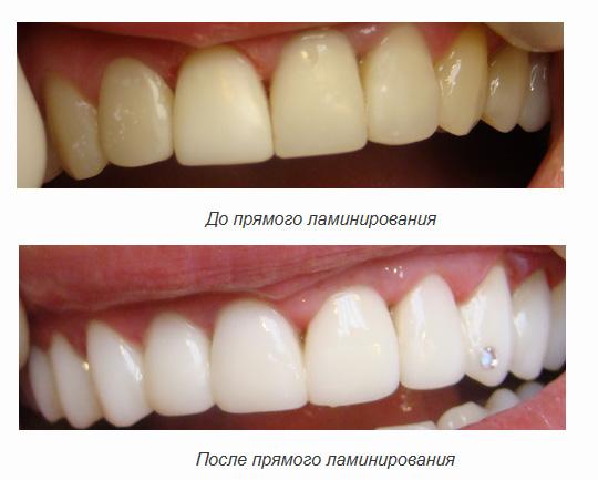 Ламинирование зубов в Кемерово